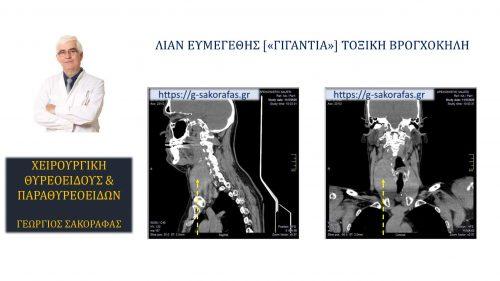 Ολική θυρεοειδεκτομή σε ασθενή με λίαν ευμεγέθη ('γιγάντια') τοξική βρογχοκήλη_3